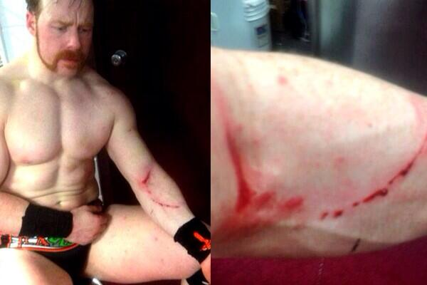 Another Big Match Added to WWE Main Event Tomorrow Night, Sheamus Suffers Multiple Lacerations on Raw Bh2kSy9IEAAuxOy