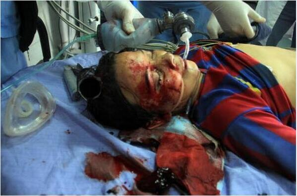 Where's the West now? MT @Op_Israel: #Gaza: 11yr-old shot by #IOF zionazis is in critical condition. http://t.co/Pqbv5kj3QA  #HumanRights