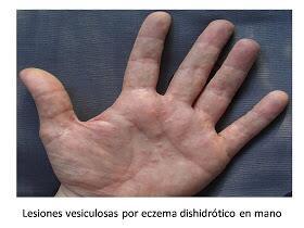 La psoriasis del ungüento las cremas los geles