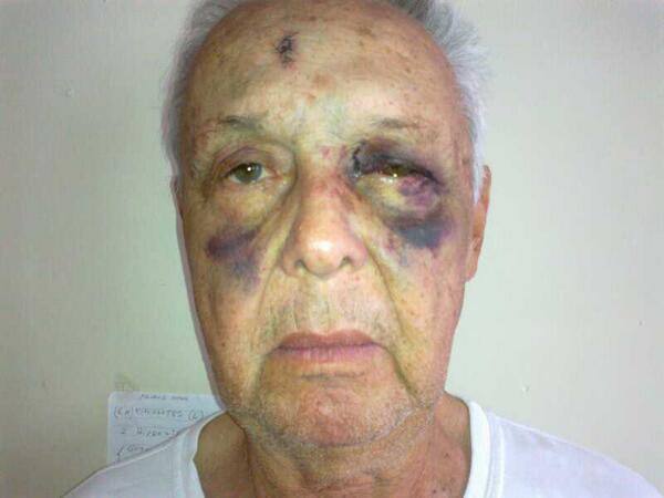 "TERRIBLE&PENOSO RT ""@huaradiaz: Mira brutalidad de policia de Mérida contra mi amigo anciano, español de 70 años http://t.co/gW93XsHIhQ"""
