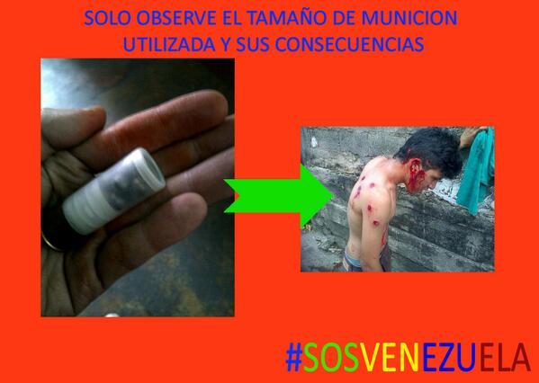 Solo vea el calibre con el que estan disparando al pueblo, esto es frabricado en el pais  #SOSVenezuela http://t.co/Rv70rIIyQm