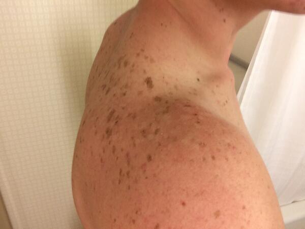 Freckles Ass 79