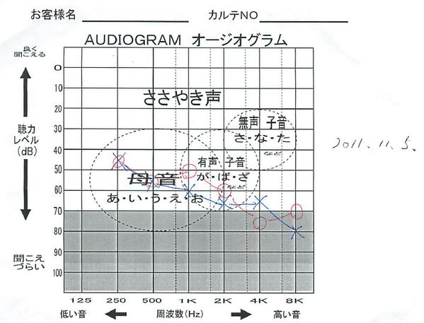 Dもらったけど、晒しとく。自分の2011年時点の聴力。グレーゾーンが身障者認定のラインなんで。計算方法はBingってくださいませ。これが某氏より悪いと思われる測定結果です。現在使用している補聴器は重度のやつです。以上('◇')ゞ http://t.co/87EUkg28ir