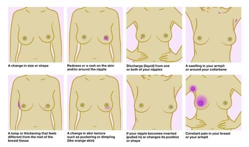 Small breasts, large breasts... Size is irrelevant; #breastcancer can affect any man or woman: http://t.co/S7ysg3v24Q http://t.co/L96BoO6y1g