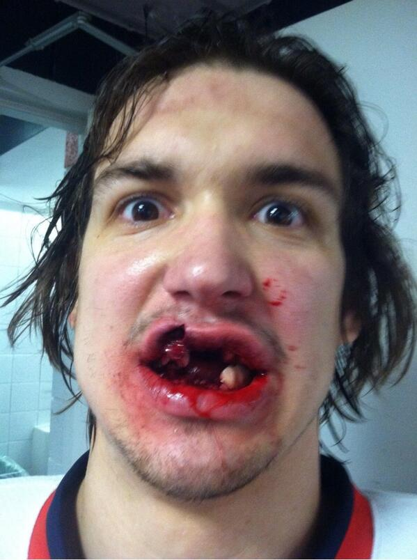 But first, let me take a #selfie. #ThatsToughness RT @Mcally15: Ouch http://t.co/wx3S3HXmYy