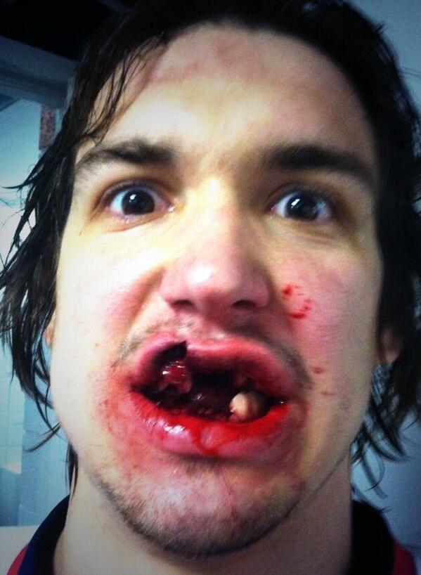 Hockey player tweets picture of his wrecked face
