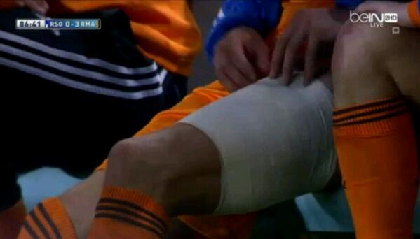 Gareth Bale to miss Real Madrid v Dortmund after getting two stitches to close a hole in his knee [Pictures]