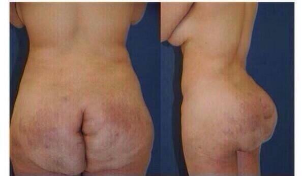Male Butt Shots 4