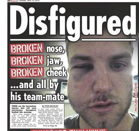Port Vale sack Daniel Jones for brutally beating club captain Doug Loft in training ground bust up [Picture]