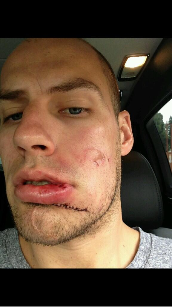 Hockey Scars Scarshockey Twitter