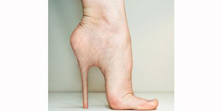"""@ELLEmagazine: The surgery you won't believe women are trying to wear heels: http://t.co/lGIyHoqaXu"" this pic gives me the heebie jeebies!"