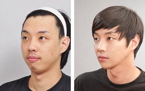 ≪韓国美容整形≫before→after  ##韓国美容整形