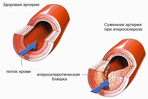 прибор ультразвуковой для ухода за кожей лица gezatone hs2307i отзывы