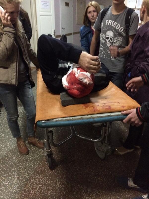В кровавом разгоне митинга в Донецке пострадали минимум 14 человек - Цензор.НЕТ 5625