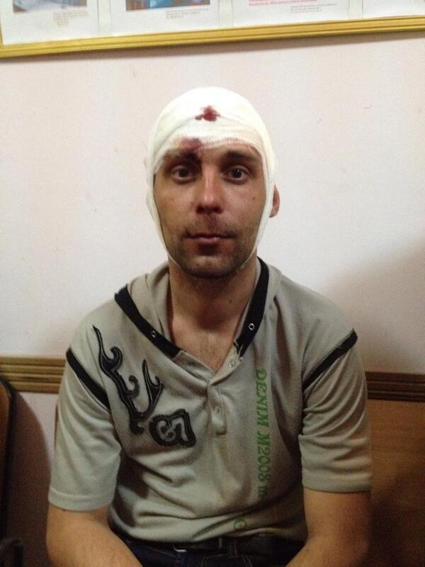 В кровавом разгоне митинга в Донецке пострадали минимум 14 человек - Цензор.НЕТ 4043