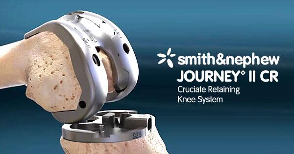 Join a LIVE Webcast Thurs 5/1 feat.  @smithnephew JOURNEY II-CR http://t.co/gx9gkD5XSU #KneeSurgery http://t.co/bcC5DFhoEK