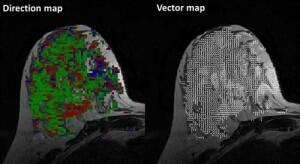 New fMRI technique observes the diffusion of water in breast tissue to find cancerous cells. http://t.co/079SPUCCVH http://t.co/EKg51AAM5Y