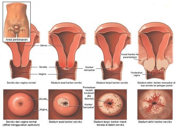 Inilah Penyebab Dan Gejala Kanker Serviks (Cervical Cancer) - AnekaNews.net
