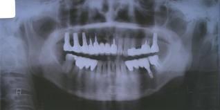 病院の放射線科や歯科医でのX線撮影で、鼻血が出たという事例は、聞いたことがありません。みなさんも、X線撮影あるでしょう。CT検査(一回、およそ10ミリシーベルト)でも、鼻血ないのです。 小学館は、福島県民に謝罪すべし。 http://t.co/c1lwHxZ7W3