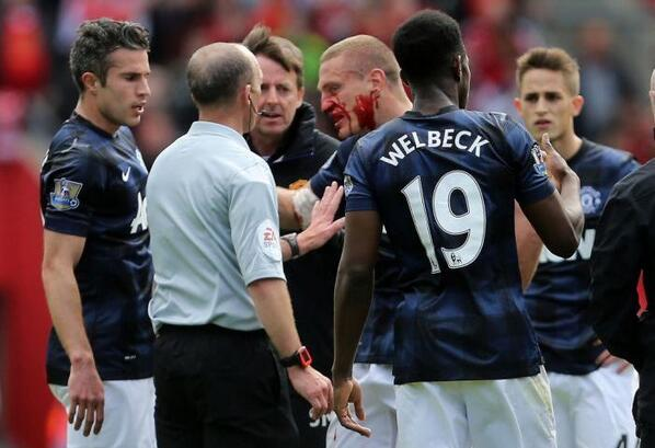 Rickie Lambert elbowed Nemanja Vidic (Man United) in the face before scoring, should have been disallowed [Vine]