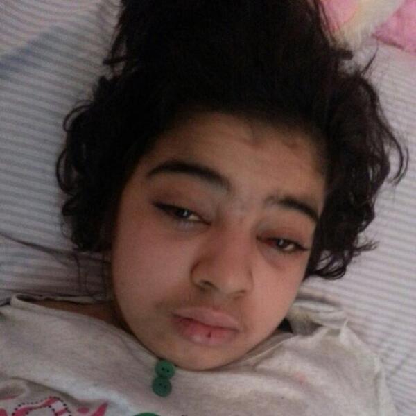 #مبادرة_زيارة_داليا طفلة وحيدة جزائرية بالكويت  مريضة بالنخاع الشوكي تتمنى زيارة منكم.. الله يشافيها يا رب  @dalia_kw http://t.co/q9gDS8oVHY