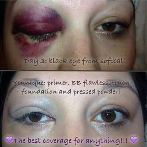 Makeup to cover a black eye