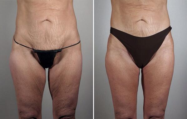 Adelgazar brazos y abdomen swelling