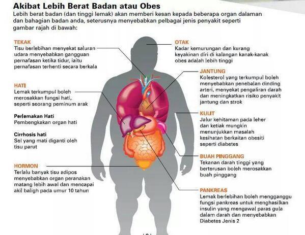 10 Kesan Obesiti Kepada Tubuh Manusia