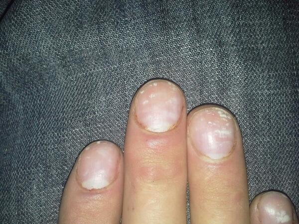 Dr Karl On Twitter White Marks Nails Calcium Deposits Or