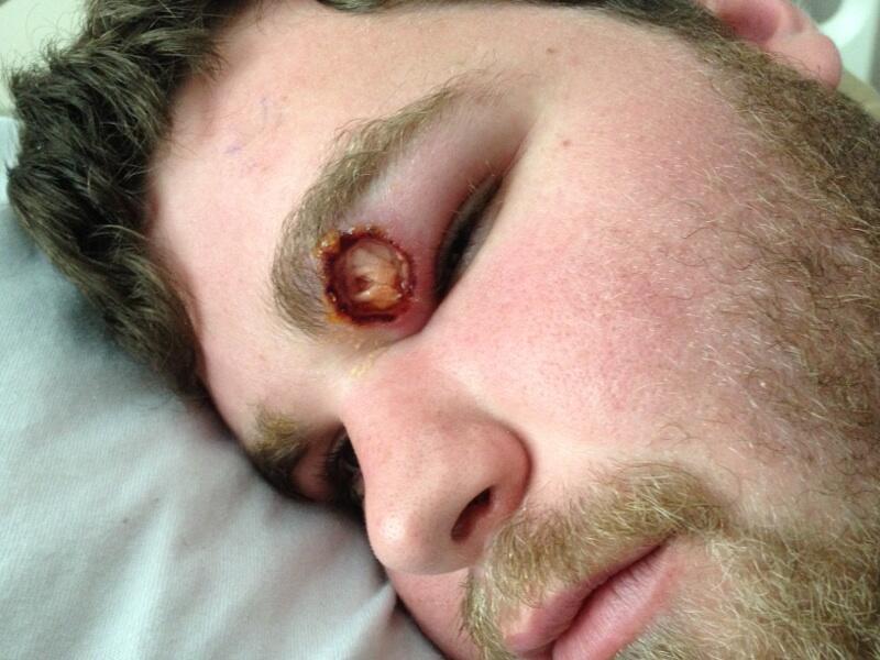 Dog Bite On Eyelid