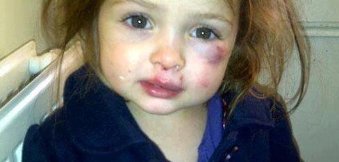Fakta Kekerasan Terhadap Anak Dalam Rumah Tangga - AnekaNews.net