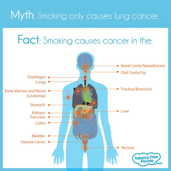 A2: Myth- smoking only causes lung cancer. Fact- smoking can cause cancer almost anywhere in the body. #HealthTalk http://t.co/5wrn26FgPM