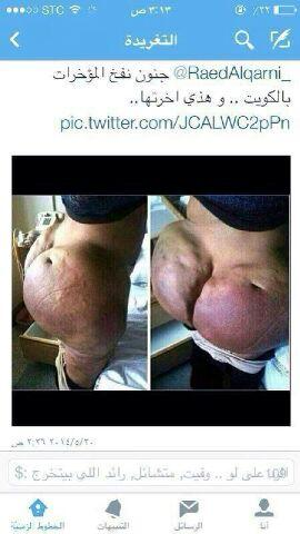 The dangers of body fillers! Know what is being injected before having it done! http://t.co/me3zsBLsef
