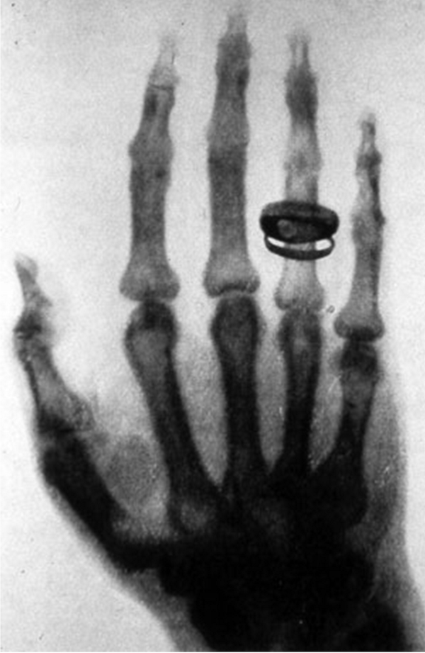 @riklomas & here it is! An image of the detailed bone structures in his wife's hand #asksummerscience #xray #imaging http://t.co/eZrbBMVYUr