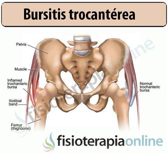 El tratamiento eficaz la hernia intervertebral