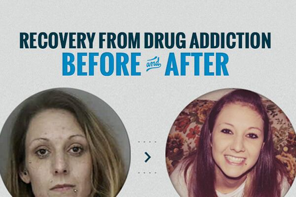 drug addiction before and after