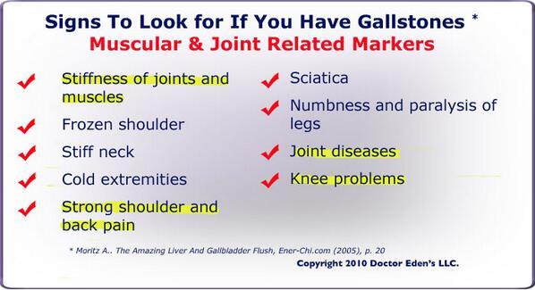 "gallbladder symptoms on twitter: ""did you know that sciatica, Human body"