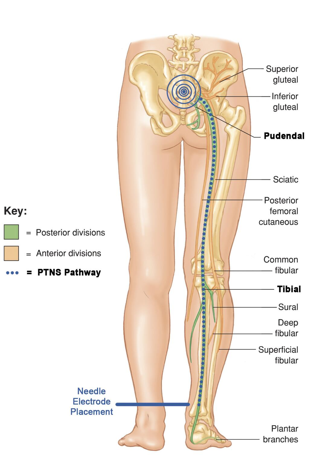 Cogentix Medical On Twitter This Illustration Shows The Tibial