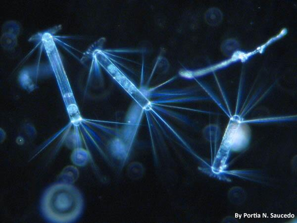 A little underwater sparkle for your #4thofJuly. (Corethron Marine Diatoms, Richmond, CA) http://t.co/bzwvkPlRNh