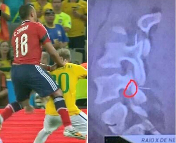 Neymar 'was one inch away' from being paralysed by Juan Zuniga tackle: http://t.co/QQLP5S6Pmv http://t.co/pv9PGDqDJz