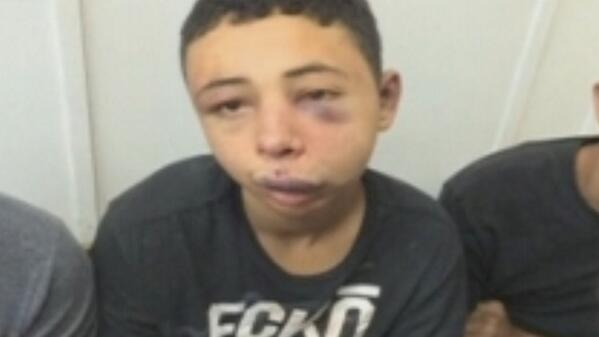 American Teen Visiting Israel Reportedly Beaten By Police