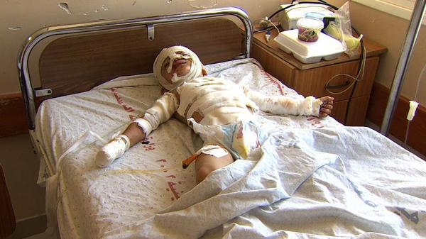 3-yr-old #Gaza boy Mahmoud. Wounded by a missile http://t.co/goPqnJMtzm