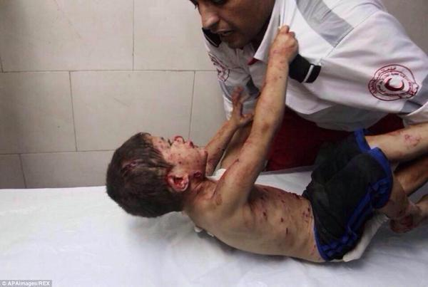 Painful: Injured and scared boy holding on to ambulance man after an Israeli attack on #Gaza. #humanrights #Palestine http://t.co/gLsESsUqJP