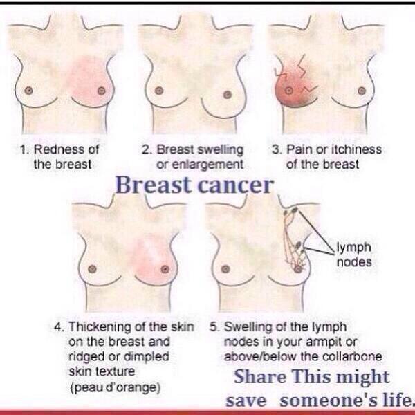 Retweet you might save a life! http://t.co/XDRAzBezEA