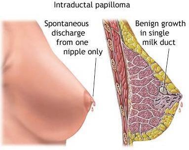 Intraductal papilloma ttt.