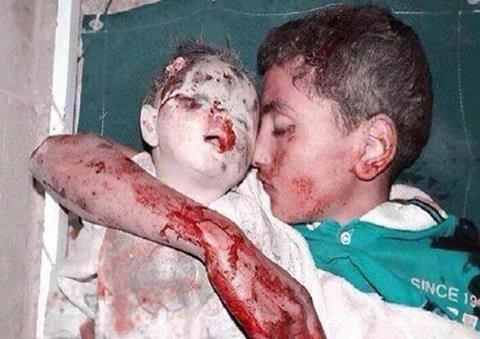 #Israel, & those that support you, take a look at this picture and reflect on what you have done http://t.co/FCqZDB6ogX