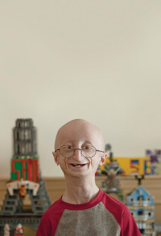 Congratulations! #LifeAccordingToSam recieves #Emmys nom for Exceptional Merit in Documentary Filmmaking @progeria http://t.co/1lKA74sQSZ""