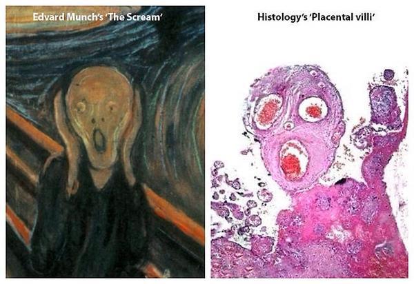 Scream  v Placental villi Histology  http   t co IukpZRbgzR http   t