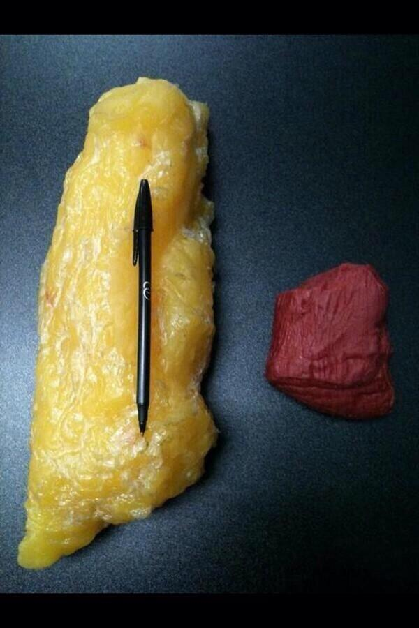 "1lb of fat. Right 1 lb of muscle. Via @KayakingSurgeon  http://t.co/6Tb63rNp0s"" Density of muscle compared to fat!"""