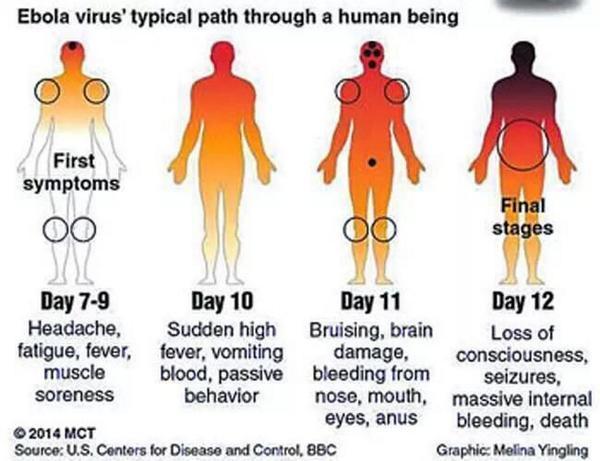 Canadian Doctor Affected With Ebola Disease... Bt2ysNWIYAAdTHv
